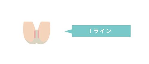 Iラインの図