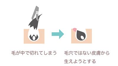 脇の埋もれ毛の説明図
