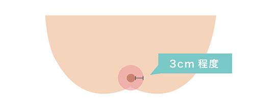 Oライン脱毛の範囲のイメージ画像