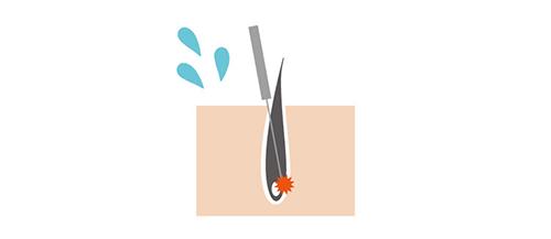 ニードル脱毛のイメージ画像
