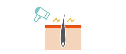 家庭用脱毛器のイメージ画像