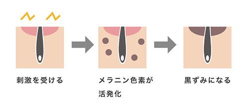 ムダ毛処理が原因の肌の黒ずみの工程